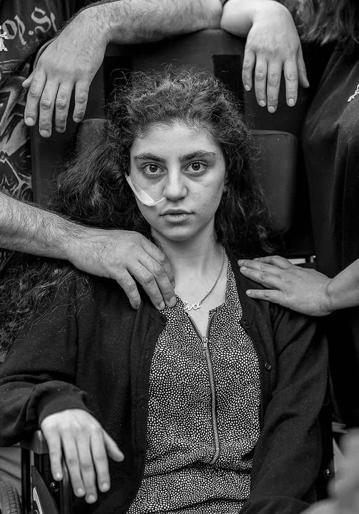 Awakening muestra una chica sentada y herida. Fotografía finalista del World Press Photo 2020 Barcelona.